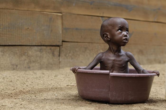 Число голодающих достигло 815 млн человек— ФАО
