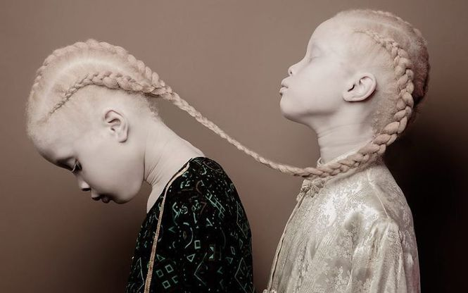 модели-альбиносы