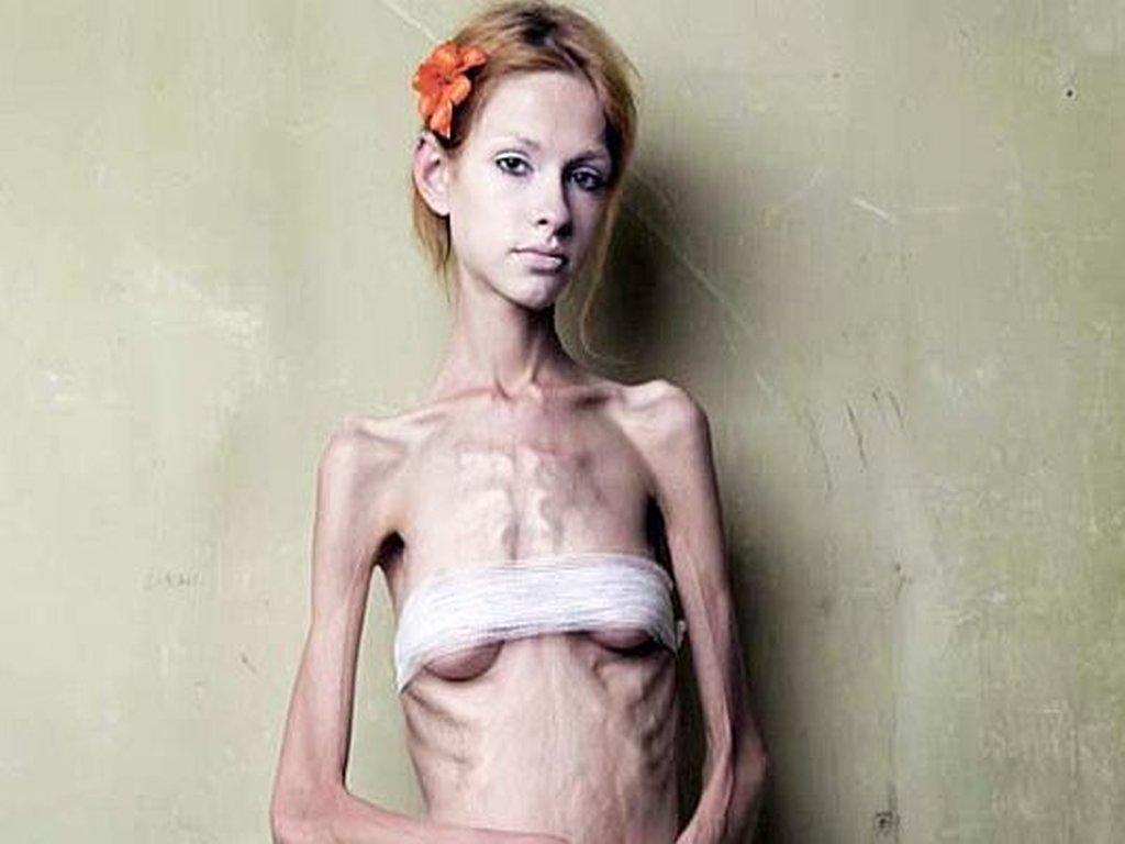 фото очень худой женщины