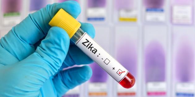 вирус Зика1