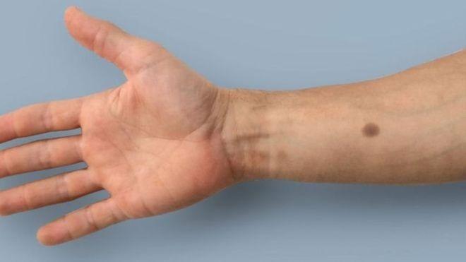 кожный имплант