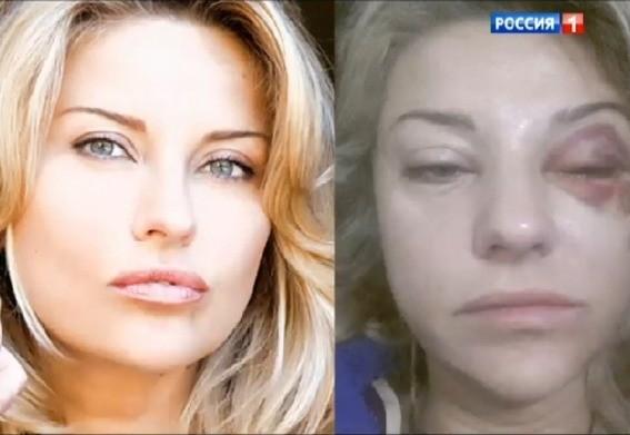 жена башарова