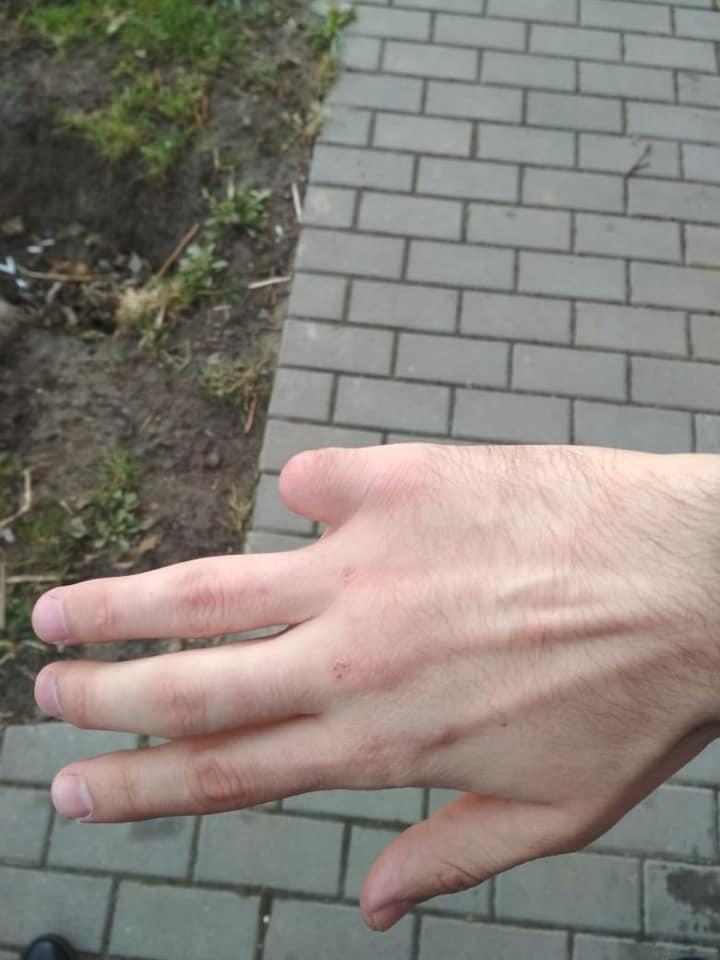 нет пальца