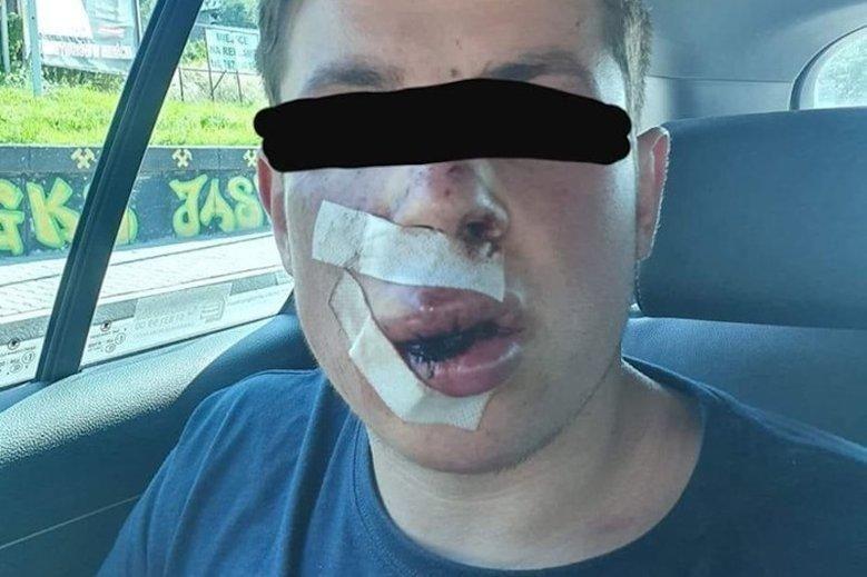 избитый украинец.