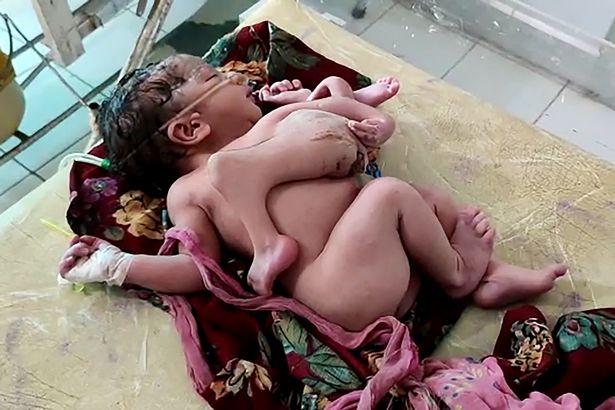 малышка с лишними руками и ногами