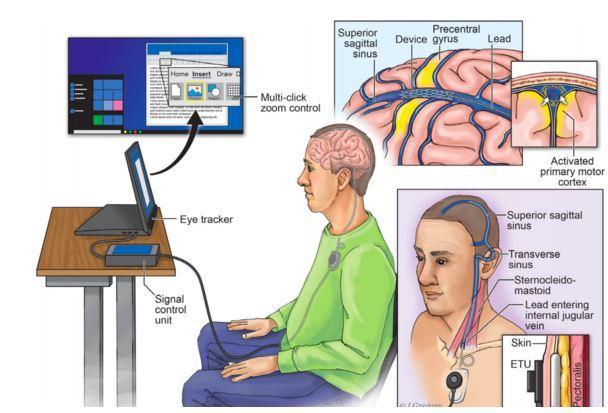 подключение мозга к коспьютеру